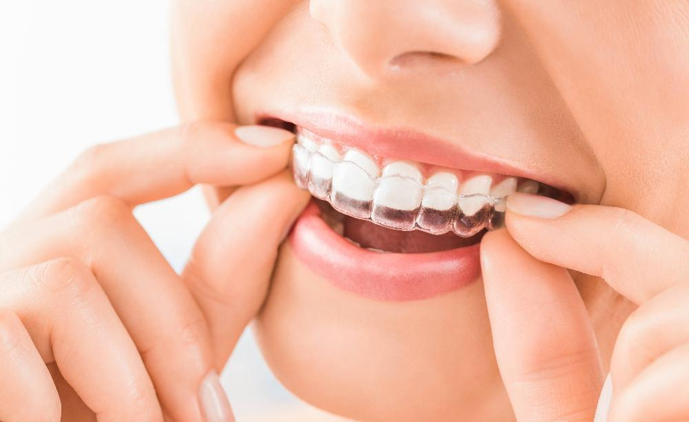 invisalign | houston tx dentist
